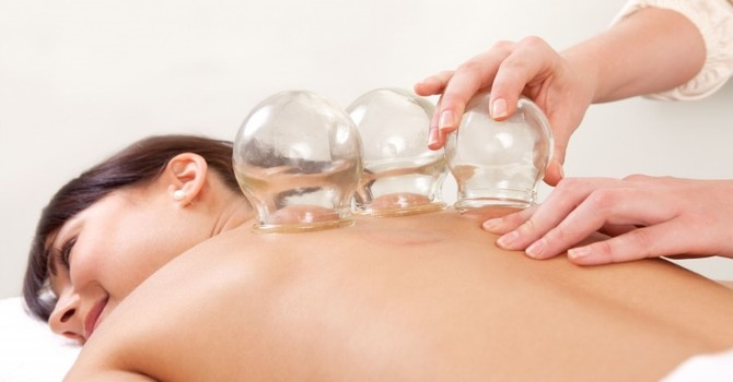 What Is Cupping? image